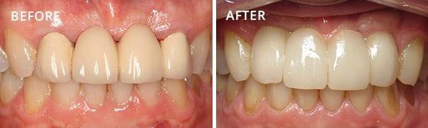 Dental Implants Poway Patient 2.1