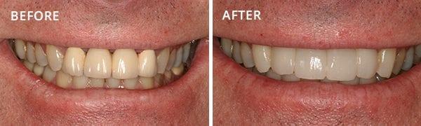 Dental Implants Poway Patient 2