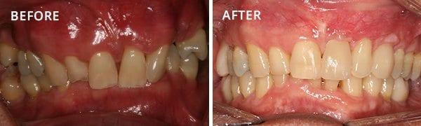 Dental Implants Poway Patient 3.1