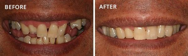 Dental Implants Poway Patient 3