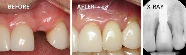 Dental Implants San Diego Patient 2.3