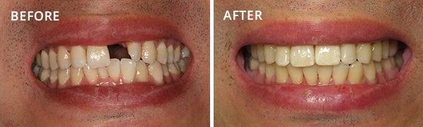 Dental Implants San Diego Patient 1
