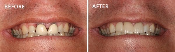 Dental Implants San Diego Patient 3