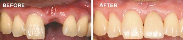 Placement of dental implants