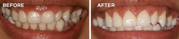 Before and After Gingival Recontouring 1