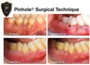 pinhole-surgical-technique