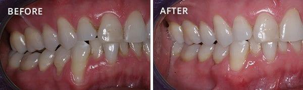 Gum Grafting Rancho Santa Fe Patient 4.1