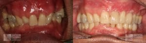 Dental Implants & Orthodontics Patient 6b