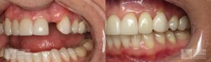 Before and After Dental Implants Patient 2c