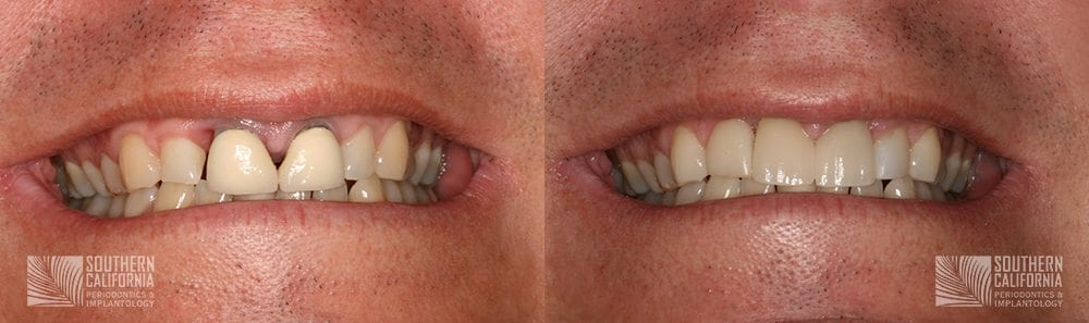 Before and After Dental Implants Patient 3a