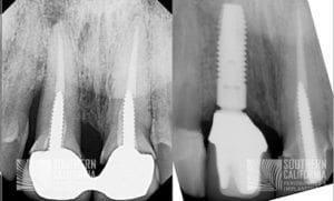 Dental Implants Patient 3b Xrays