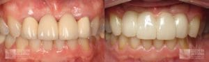 Before and After Dental Implants Patient 5b