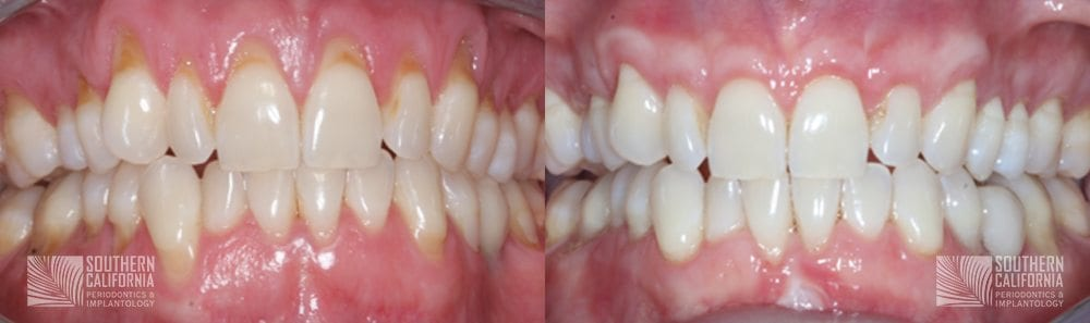 Before and After Gum Graft Patient 7