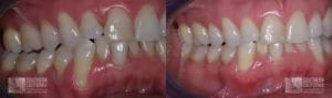Before and After Gum Graft Patient 9b
