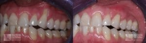 Before and After Gum Graft Patient 9c