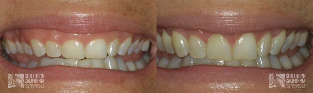 Before and After Crown Lengthening 4