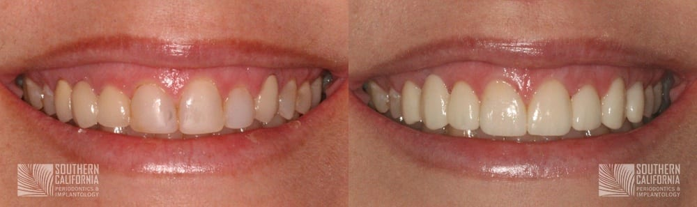 Before and After Crown Lengthening 5