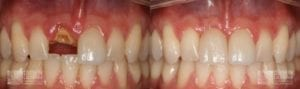 Before and After Dental Implants 10.1