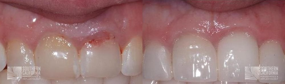 Before and After Dental Implants 11