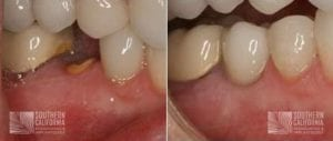 Before and After Dental Implants 12.1