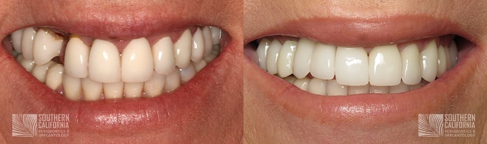 Before and After Dental Implants 8