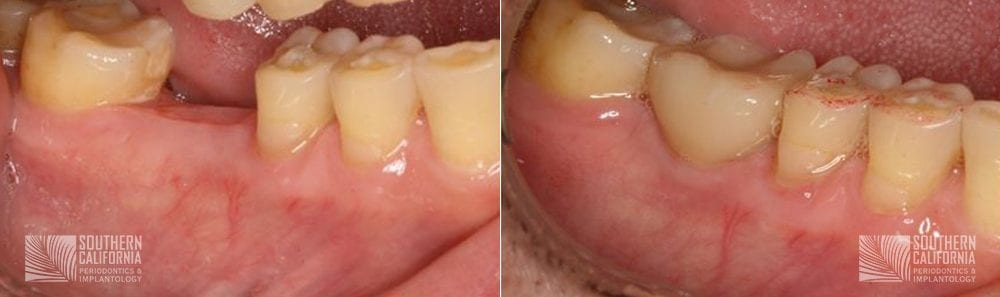 Before and After Dental Implants 9