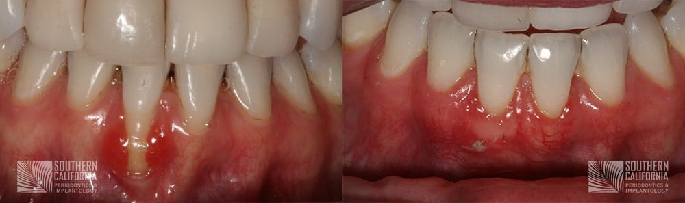 Before and After Tissue Graft 13