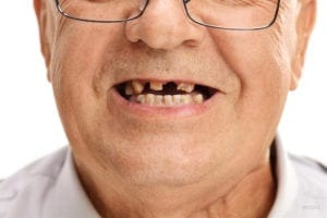 7 Reasons for a Tooth Extraction